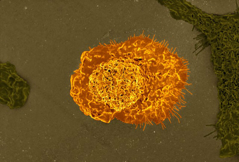 And on a small scale (scanning electron micrograph of a macrophage).
