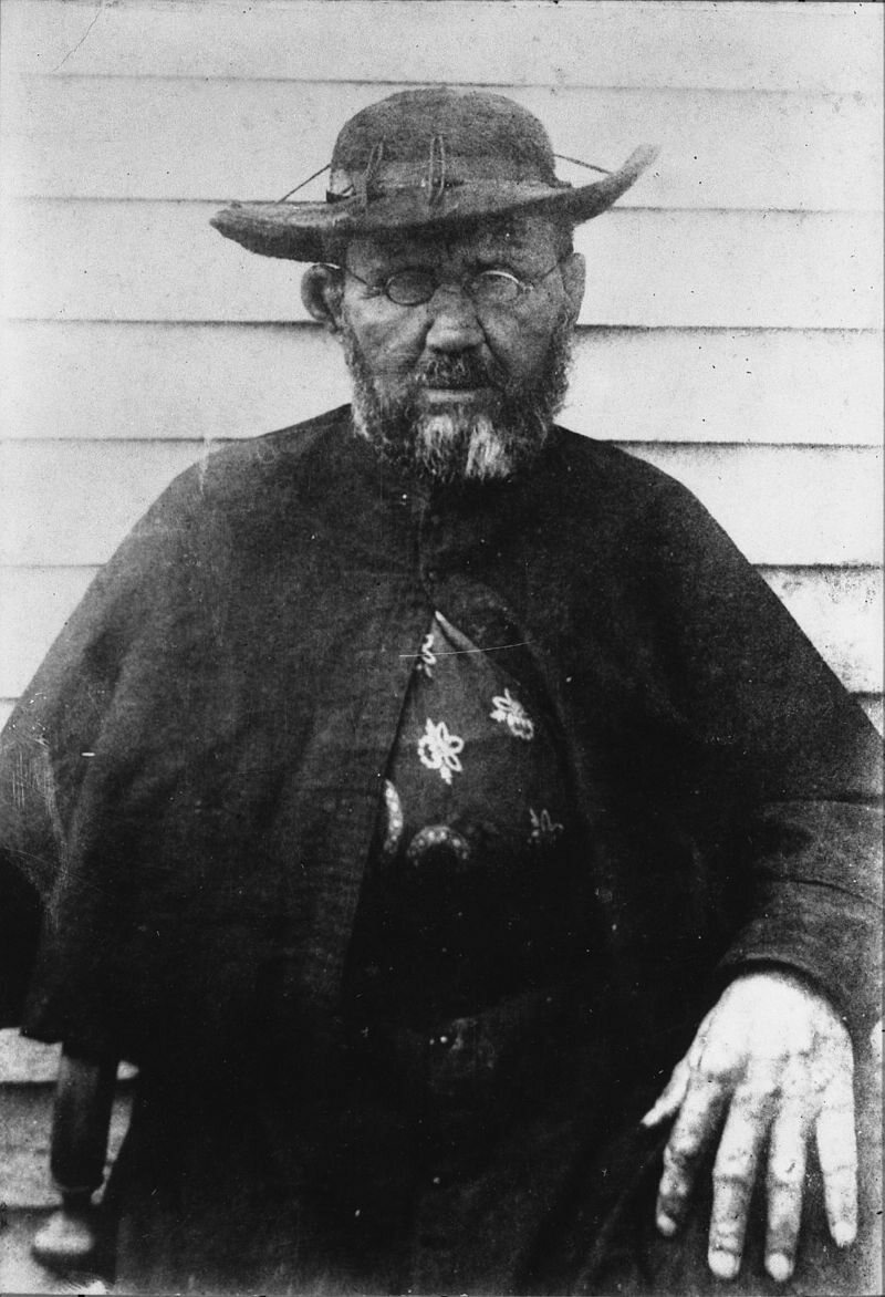 https://commons.wikimedia.org/wiki/File:Father_Damien,_photograph_by_William_Brigham.jpg