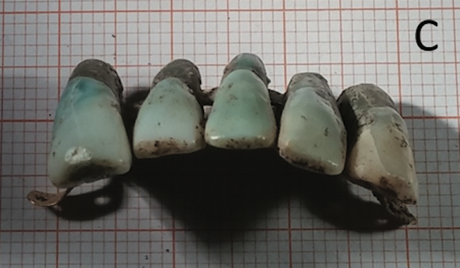 The dentures were found in the tomb of a powerful family.