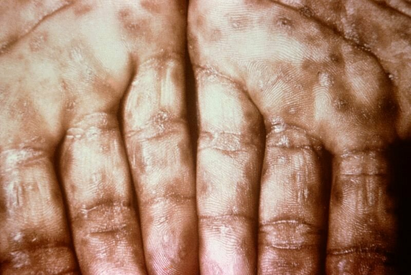 Syphilis lesions can look similar to smallpox lesions, an unfortunate coincidence that had horrible consequences.
