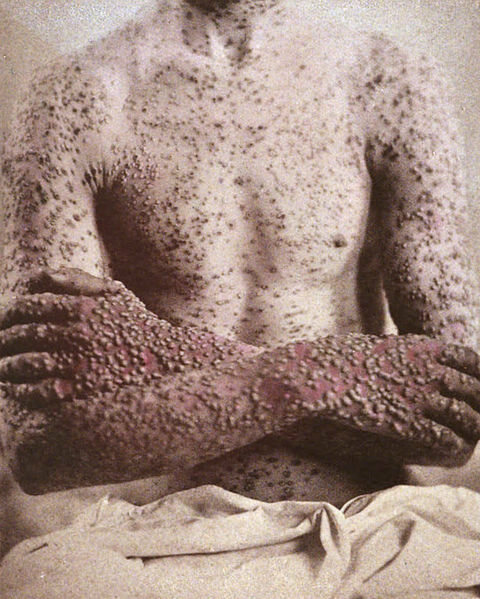 Before being eradicated, smallpox terrorized the world for thousands of years.