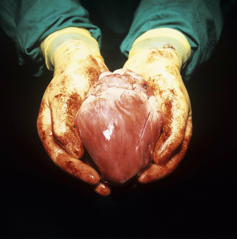 Only a select number of patients can experience holding their own heart in their hands.