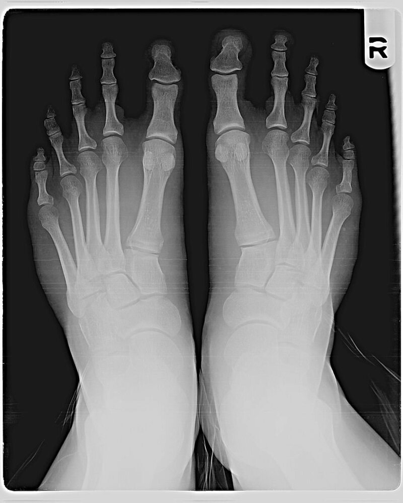 An x-ray showing Morton's Toe.