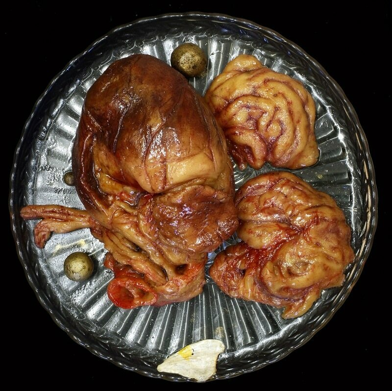 If You Are In The Mood To Lavish Your Lover With Decadent Candies And Sweets This Valentines Day Look No Further Than These Hyperrealistic Organs Made Out