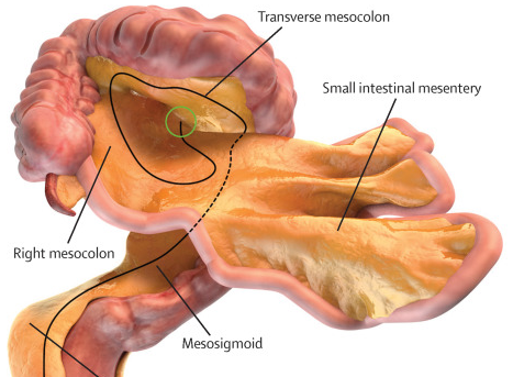 Scientists created this mockup of the mesentery and related body parts.