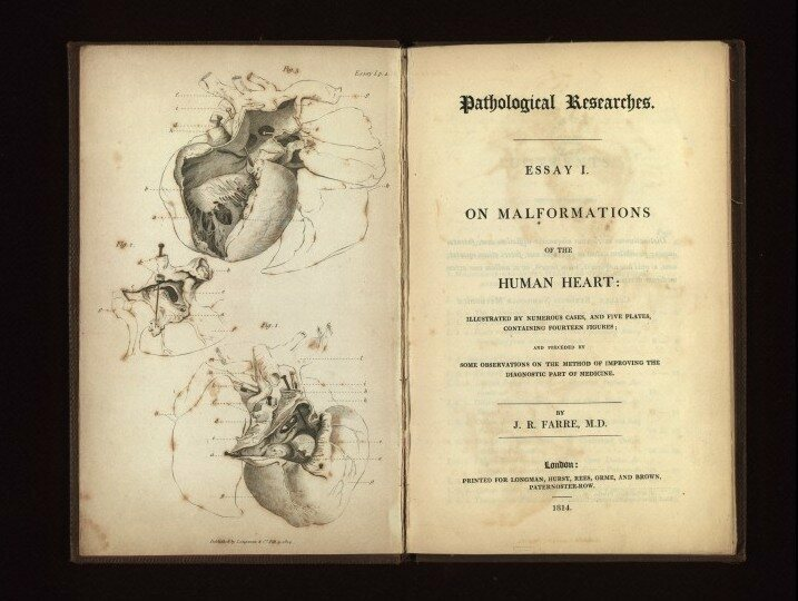 "J.R. Farre's ""On malformations of the human heart,"" an example of heart research in Beethoven's time."