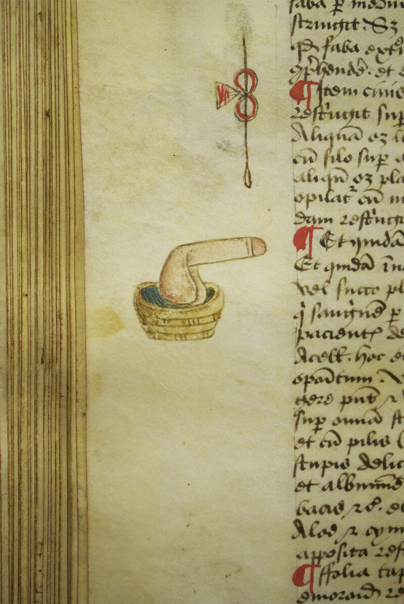 A disembodied penis in a basket in the margin's of Arderne's treatise.