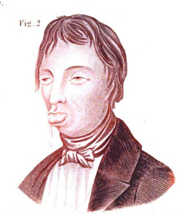 "Drawing of a ""habitual masturbator,"" from the 1847 book <em>The Silent Friend</em>."