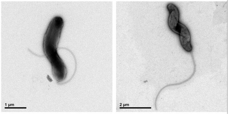 The <em>Marinomonas promoryiensis</em> bacterium.