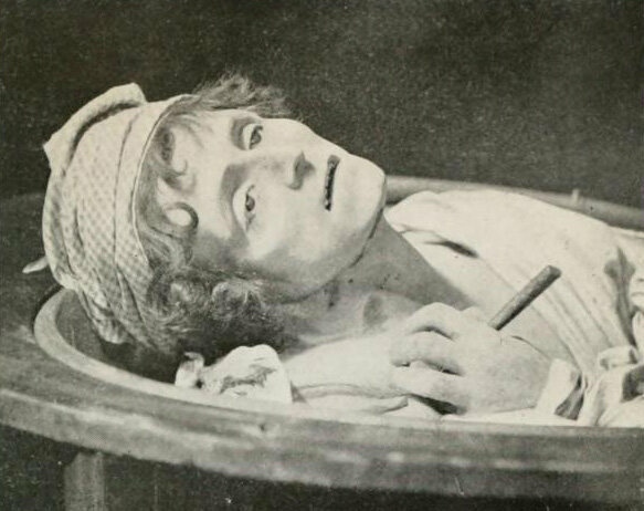 Grosholtz took a death mask of Jean-Paul Marat in his bathtub, where he was stabbed, in 1793.