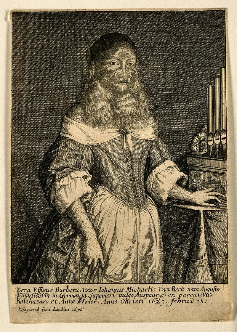 A 17th-century engraving by R. Gaywood, with the title <em>Barbara Vanbeck, a very hairy woman</em>.