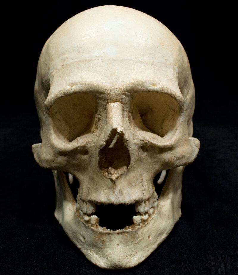 A replica of Big Nose George's skull.
