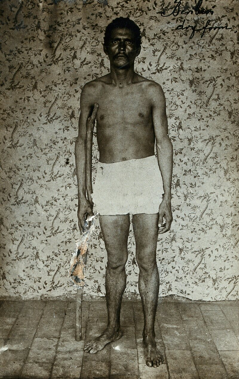 A man with legs affected by beriberi stands with a walking stick