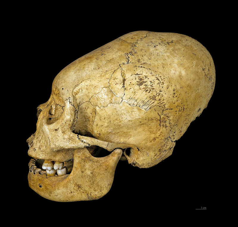 Head Space: Behind 10,000 Years Of Artificial Cranial