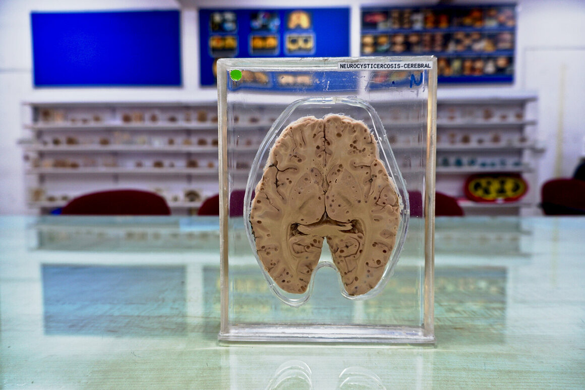 A slice of brain in a plastic casting, labelled neurocysticercosis a type of disease caused by tapeworm.
