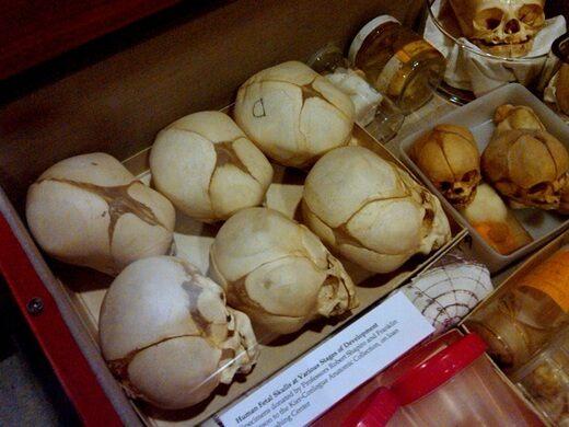 Drawer full of infant skulls