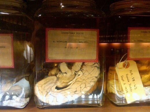 Cushing Brain Collection, Yale