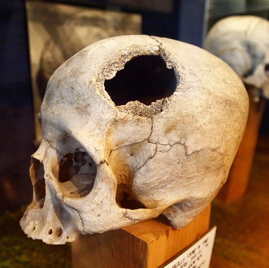"""The Museum maintains an extensive collection of """"trephined"""" skulls, largely from ancient Central America"""