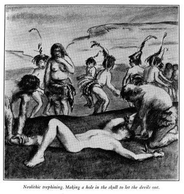 Illustration of neolithic trephination.