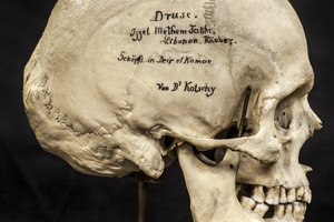 Objects of Intrigue: Every Skull Has a Story