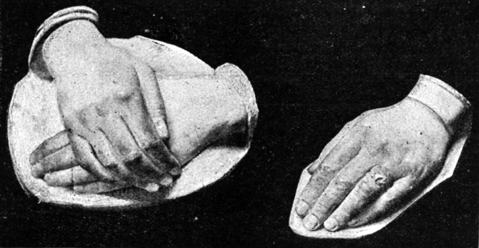 Casts of the hands of Princess Beatrice and Princess Louise, as part of a feature about hands in an 1893 edition of <em>The Strand Magazine</em>.