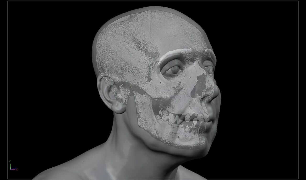 The skull of Lilias Adie, an accused witch, is superimposed over her face in this 2018 reconstruction by forensic artist Christopher Rynn.