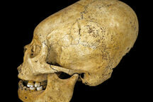 Head Space: Behind 10,000 Years of Artificial Cranial Modification