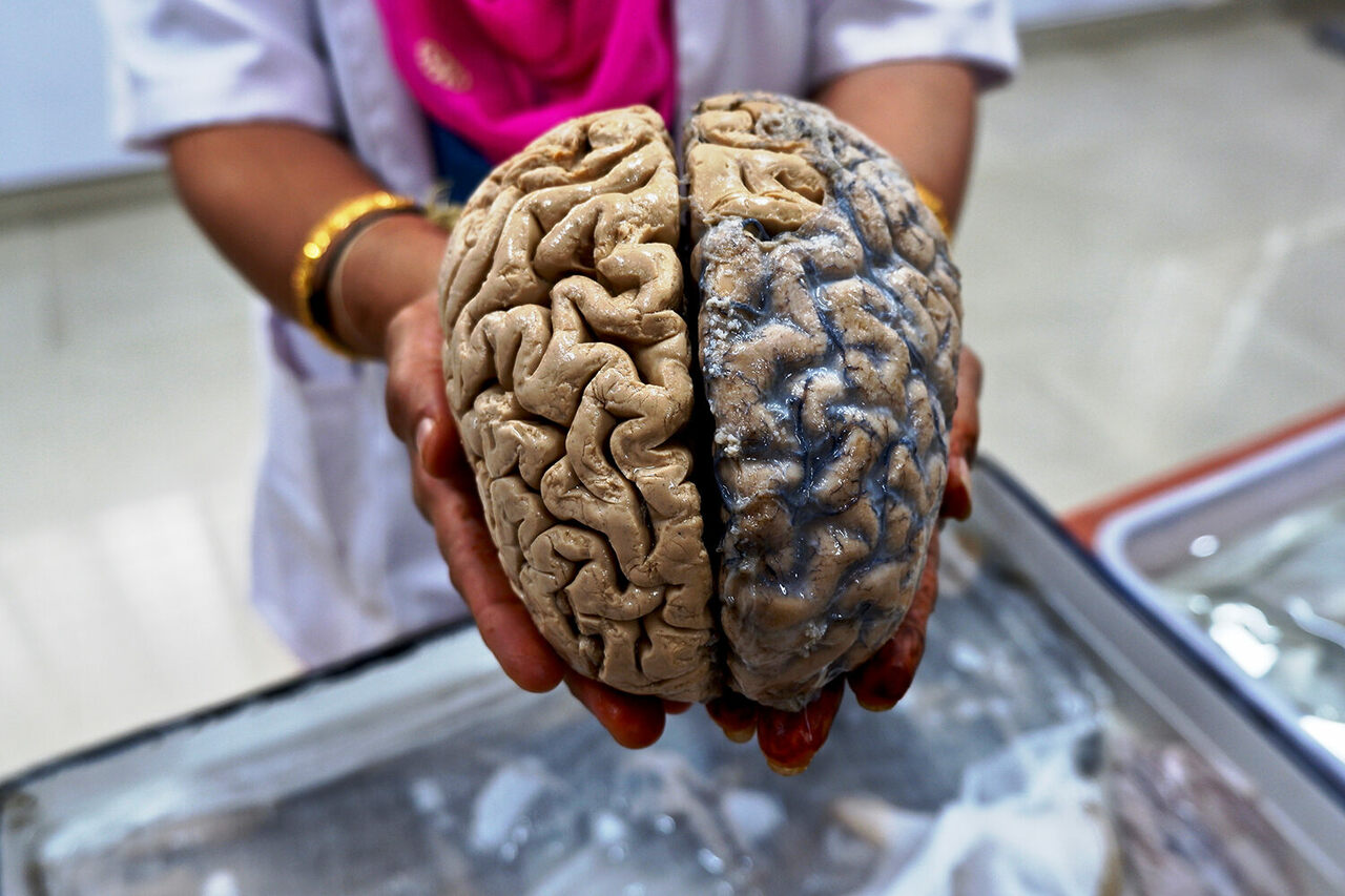 A formalin fixed human brain, ready to be handed to visitors.