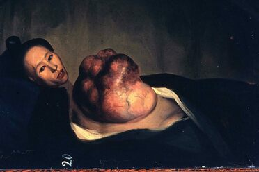 Lam Qua's portrait of a woman with a malignant tumor on her chest wall.