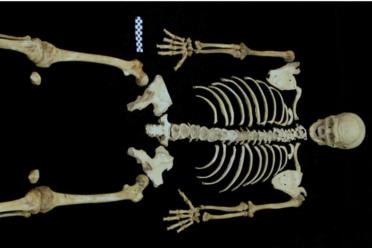 Skeletons  Atlas Obscura