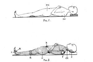 The Modest Victorian Proposal to Electroplate Corpses Into Beautiful Statues