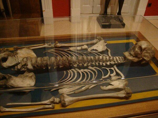 The Giant of ExtremaduraCircus - Extremadura - Life Annuity - Madrid - Peseta - Puebla Puebla - Spain - Tuberculosis