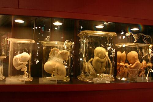 Museum Vrolik – Amsterdam, Netherlands - Atlas Obscura