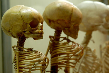 Young Skeletons