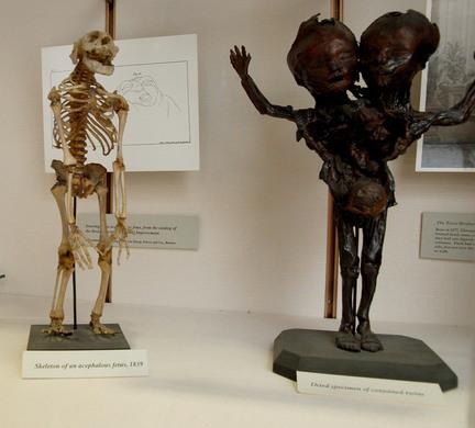 Warren Anatomical Museum Boston Massachusetts Atlas