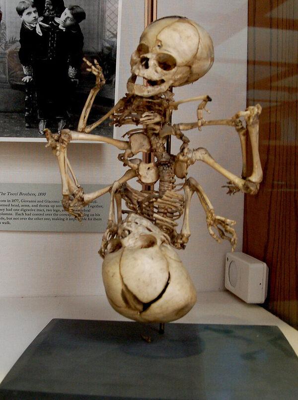 Warren Anatomical Museum – Boston, Massachusetts - Atlas Obscura