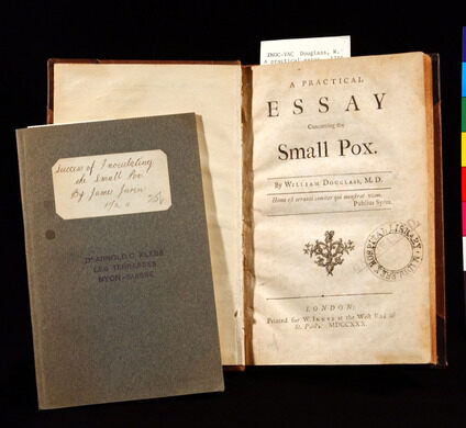 Smallpox: An Useful Essay on Smallpox | Immunology