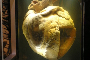 Phar Lap's heart at the National Museum of Australia.